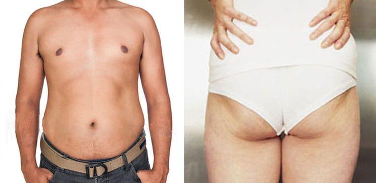 skinny-fat-guy-and-girl§1